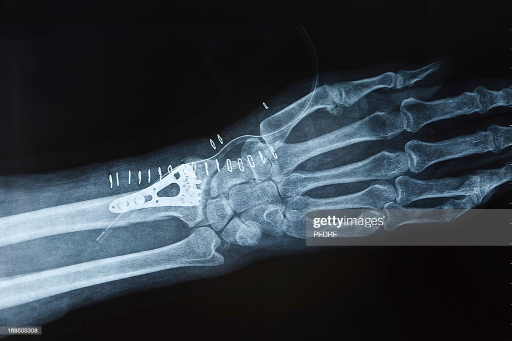 X-ray image hand fracture : Stock Photo