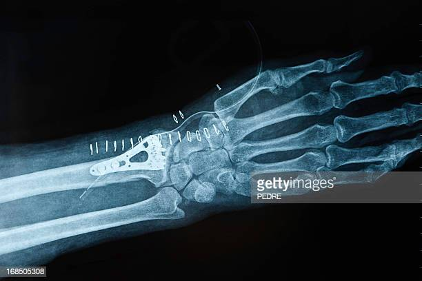 X-ray image hand fracture