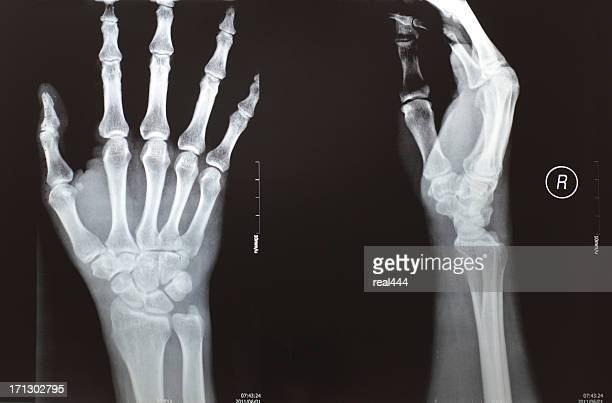 X-ray image hands