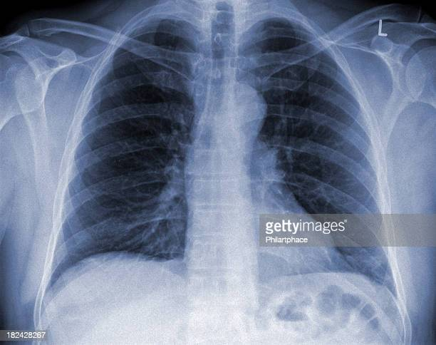 x-ray image lung - human lung stock photos and pictures