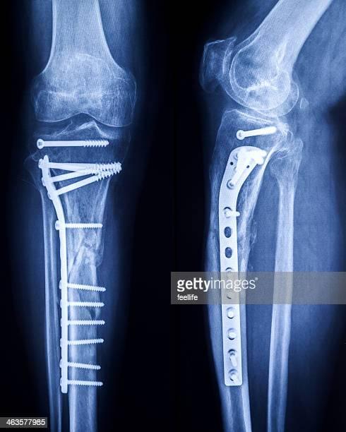 Imagem de raios X de uma perna quebrada com osteosynthetic material