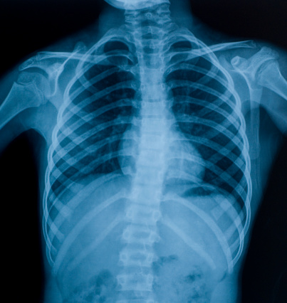 X-ray image of chest 182796373