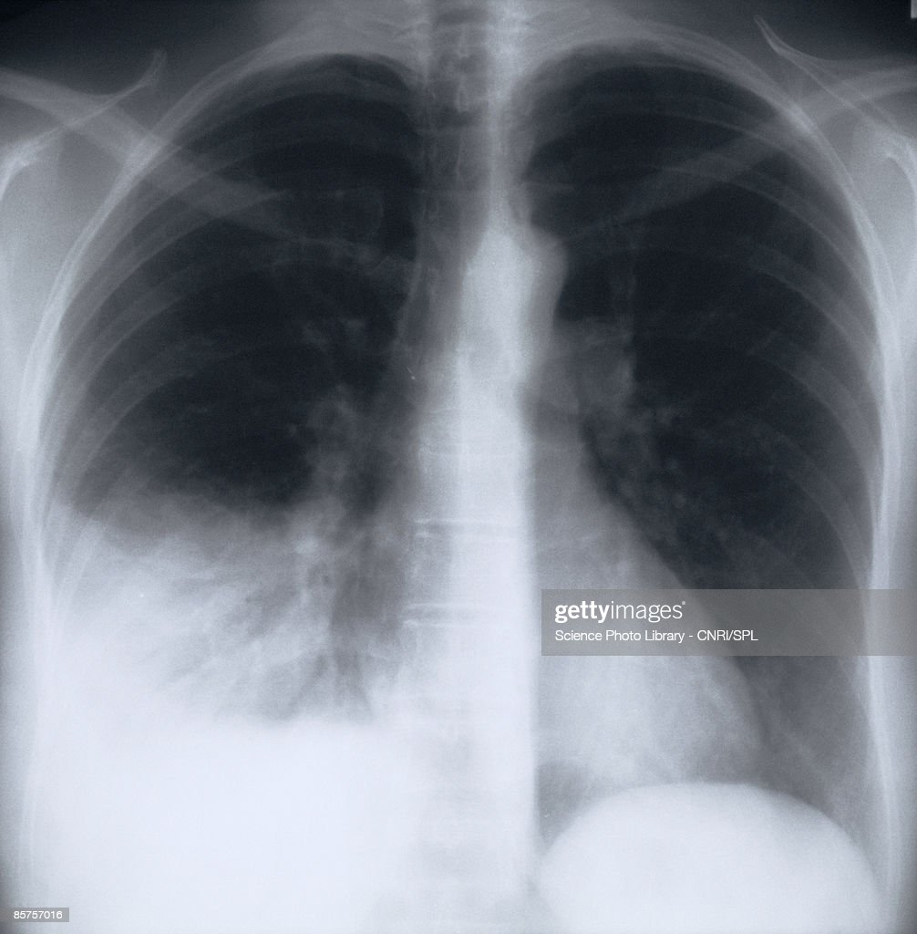 X-ray image of chest : Stock Photo
