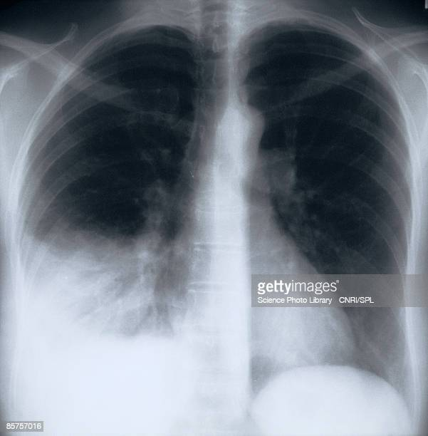 x-ray image of chest - pathogen stock photos and pictures