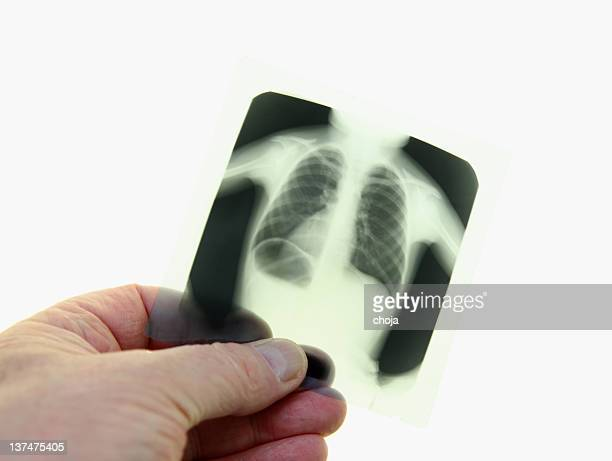 X-ray image of child´s chest