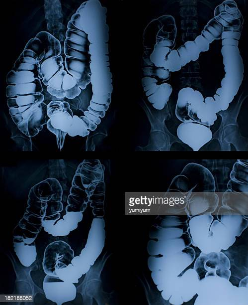 X-ray image of colon