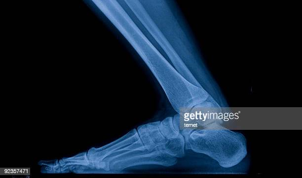 x-ray image of foot - fibula stock photos and pictures