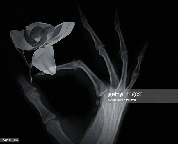 X-Ray Image Of Human Hand Holding Single Flower