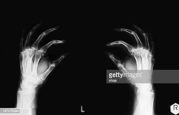 X-ray image of human hand with arthritis
