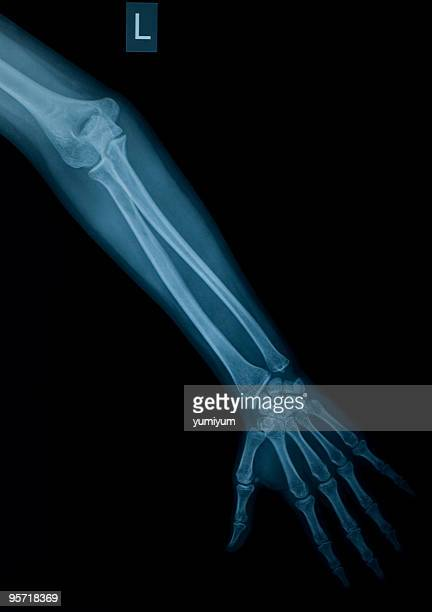 X-ray image of left arm and hand