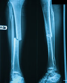 X-ray image of leg fracture with wooden splint.