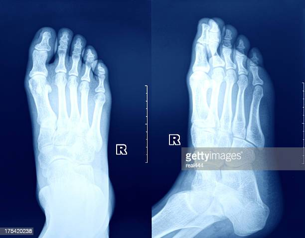 x-ray image of the foot. - toe stock pictures, royalty-free photos & images