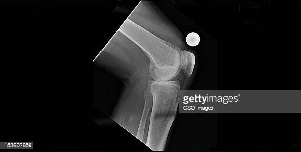 x-ray mans knee replacement pre op.