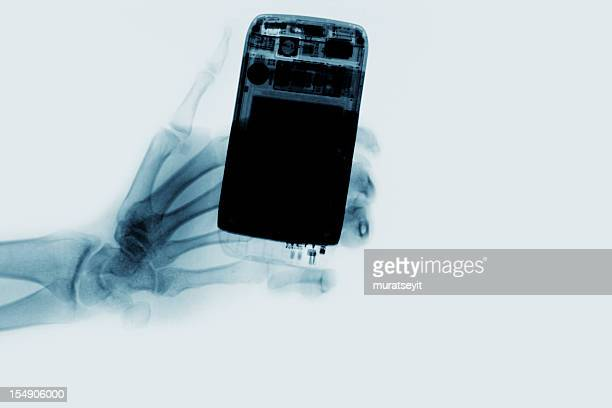 x-ray of a cell phone