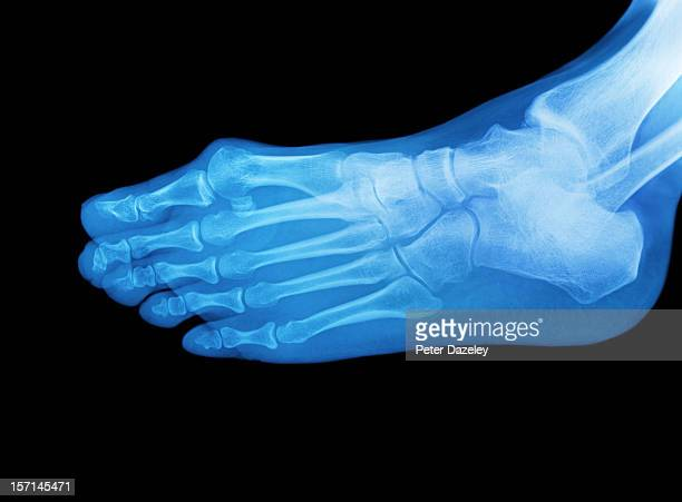 591 Foot Xray Photos And Premium High Res Pictures Getty Images