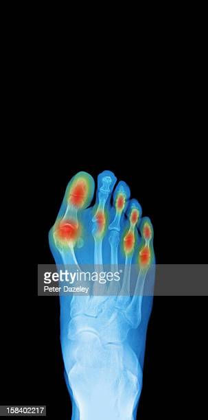 x-ray of a foot, showing areas of pain - rheumatoid arthritis stock pictures, royalty-free photos & images
