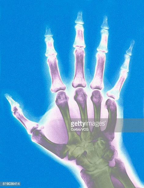 x-ray of a hand - human joint stock pictures, royalty-free photos & images