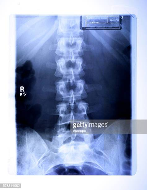Xray of a healthy lumbar spine Australia