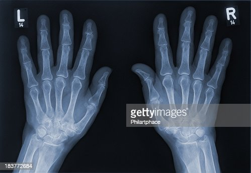 Xray Left Hand Xray Of A Left Hand An...