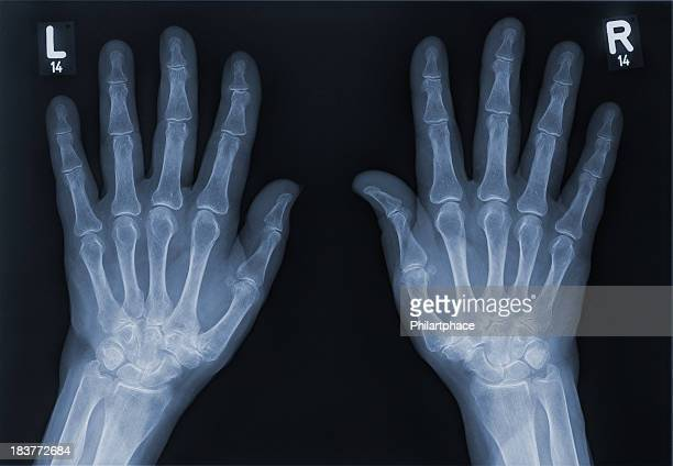 x-ray of a left hand and right hand - osteoarthritis stock photos and pictures