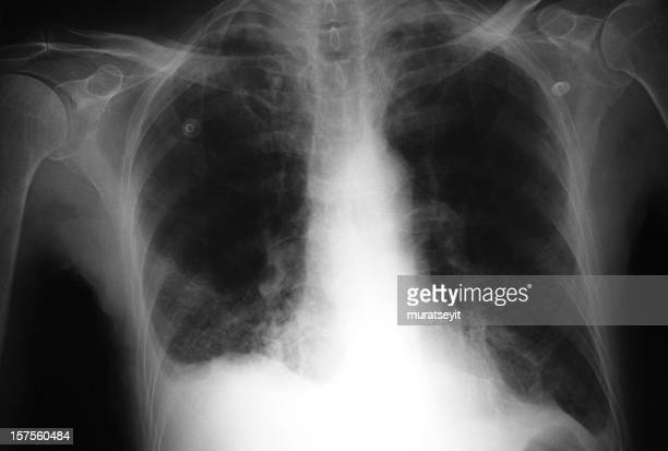 röntgenbild der lunge, die bronchitis - raucher lunge stock-fotos und bilder
