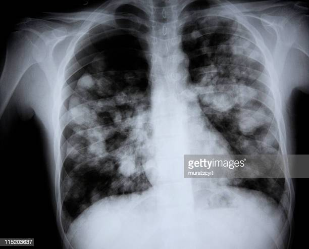 x-ray of a lunge suspected  h7n9 bird flu - chest barechested bare chested stock pictures, royalty-free photos & images