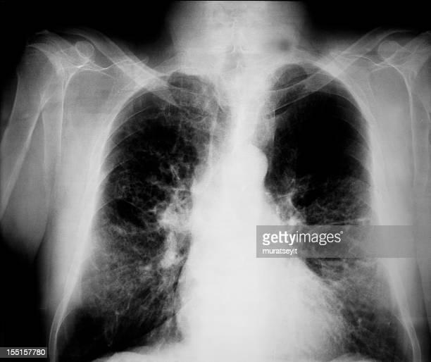x 線の生成は突き出し豚インフルエンザ