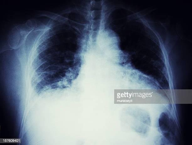 x-ray de un hombre para fumadores - bones fotografías e imágenes de stock