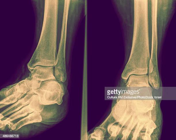 X-ray of ankle with fractured distal tibia front view, 50 year old male