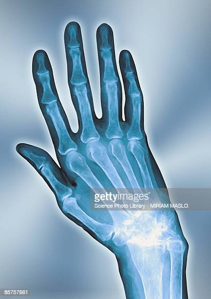 x-ray of arthritis hand, close-up - osteoarthritis stock photos and pictures