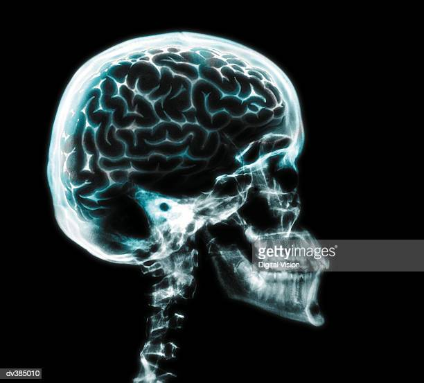x-ray of brain in skull - skull stock photos and pictures
