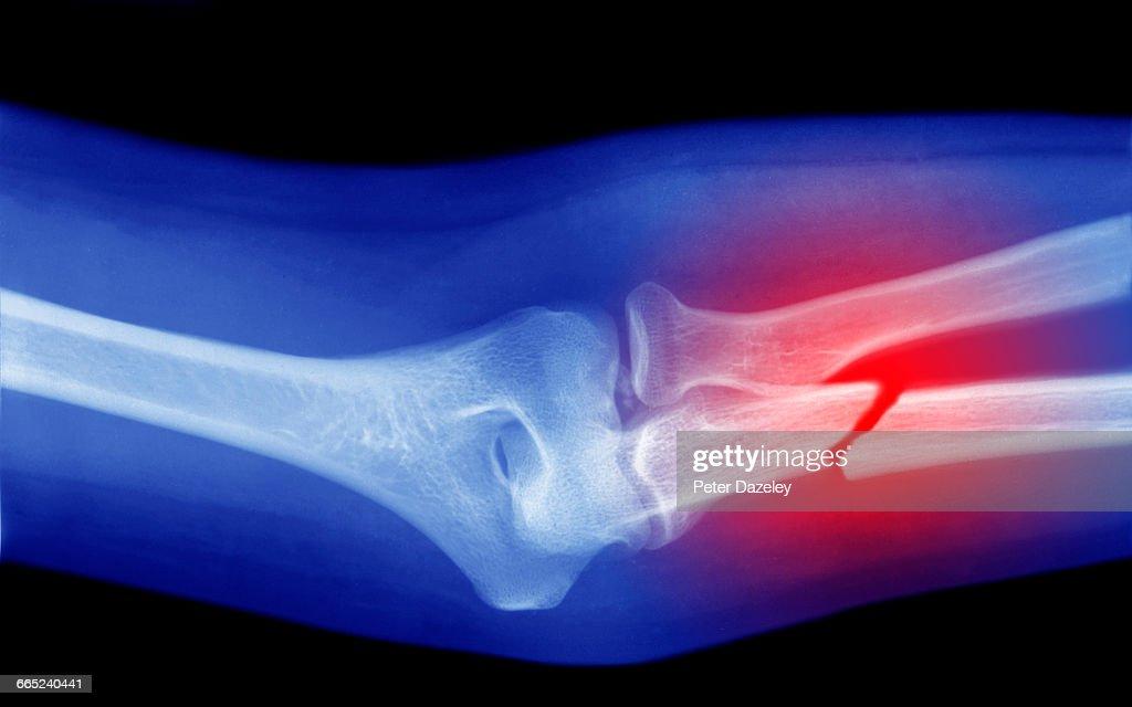 xray of broken arm : Stock Photo