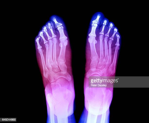 x-ray of feet showing arthritis - osteoarthritis stock photos and pictures