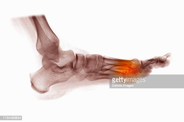 x-ray of foot showing fractured metatarsals - foot bone stock pictures, royalty-free photos & images