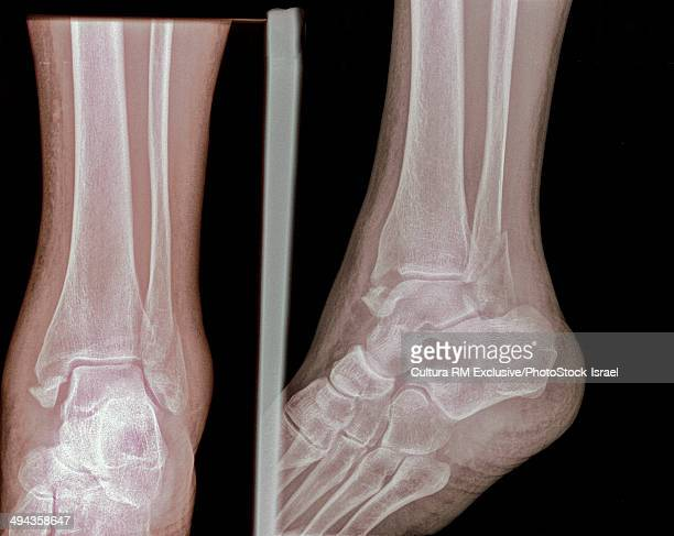 X-ray of fracture of distal tibia and fibula, 57 year old male