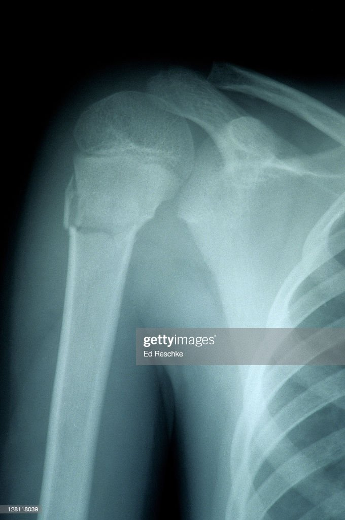 Xray Of Fractured Humerus Of Child Surgical Neck Part Of The Humerus