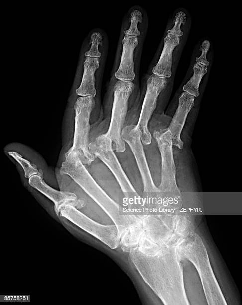 x-ray of hand of patient - osteoarthritis stock photos and pictures