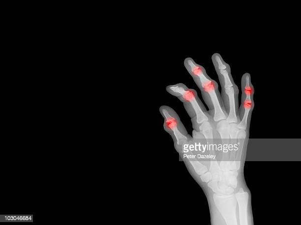 x-ray of hand showing arthritis - deformed hand stock pictures, royalty-free photos & images