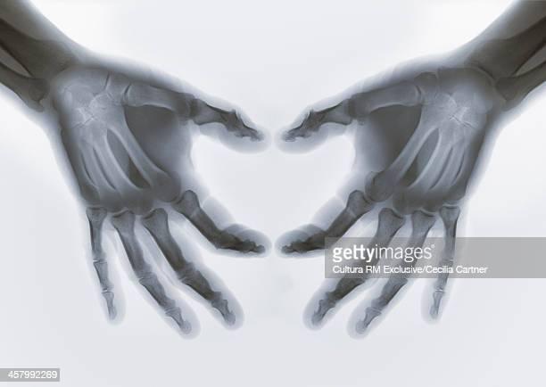 Xray of hands making heart shape