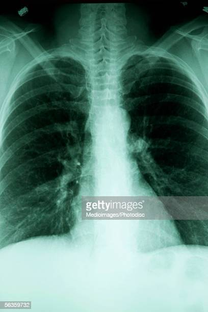 Chest X Ray Anatomy Stock Photos And Pictures Getty Images