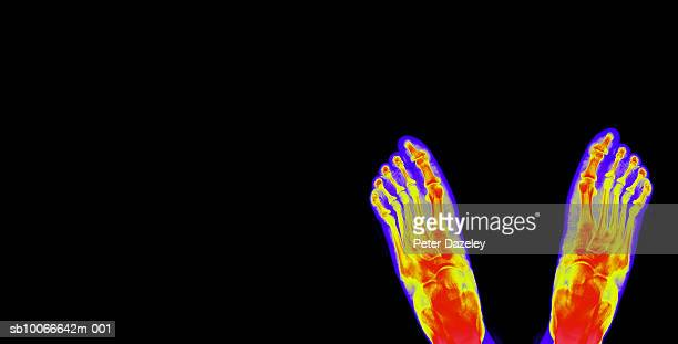 x-ray of human feet against white background, close-up - human foot stock pictures, royalty-free photos & images