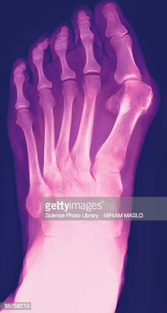 x-ray of human foot, close-up - hallux valgus photos et images de collection