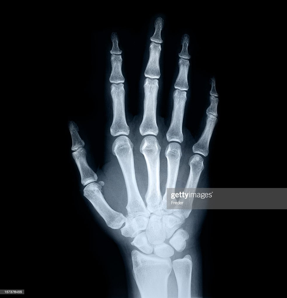 Xray Of Human Hand Stock Photo Getty Images