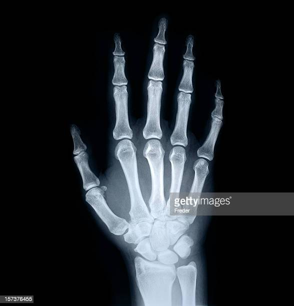 x-ray of human hand - rheumatoid arthritis stock pictures, royalty-free photos & images