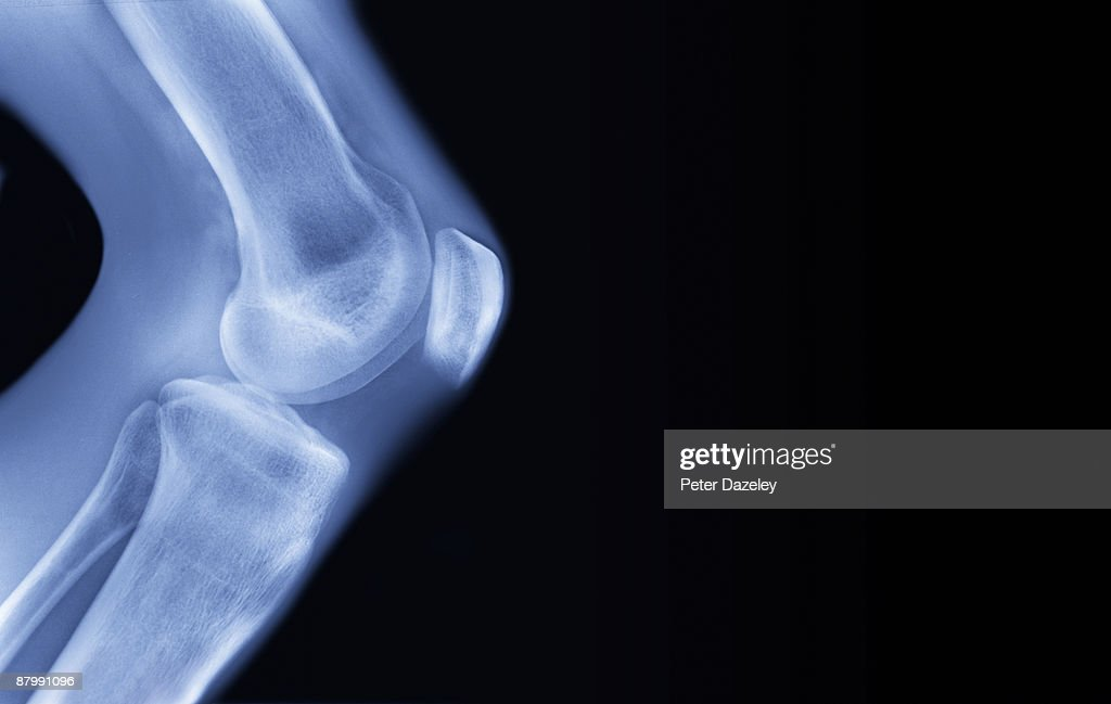 X-ray of human knee, : Stock Photo
