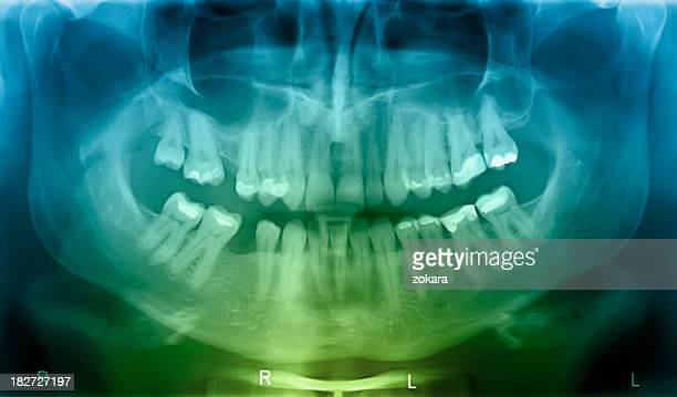 X-ray of human mouth