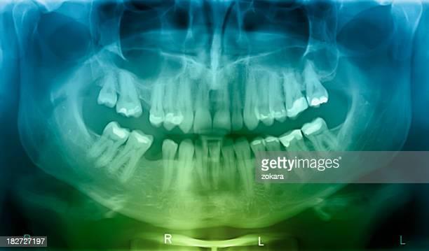 X-ray Menschlicher Mund