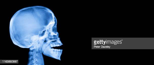 x-ray of human skull, side on - x ray image stock pictures, royalty-free photos & images