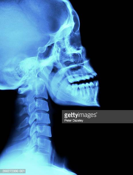 X-ray of human skull, side view