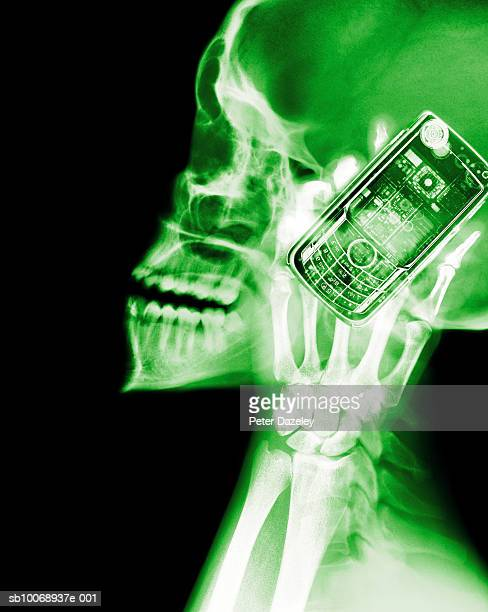 X-ray of human skull with mobile phone